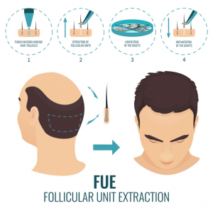Follicular unit extraction(FUE)