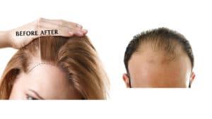 Hair-Transplant-banner