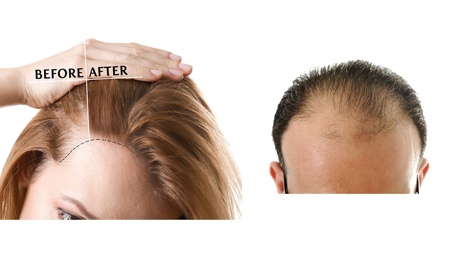 Hair Loss Treatment Best Doctor For Hair Treatment In