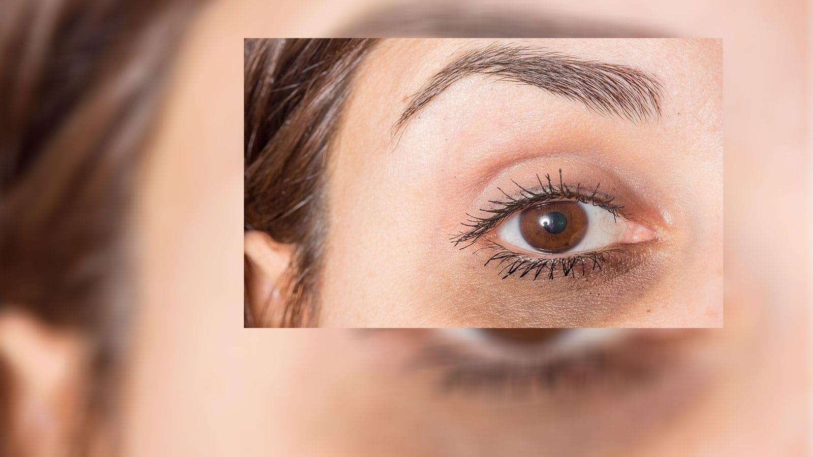 Laser Treatment for Dark Circles Under Eyes - Advance Clinic