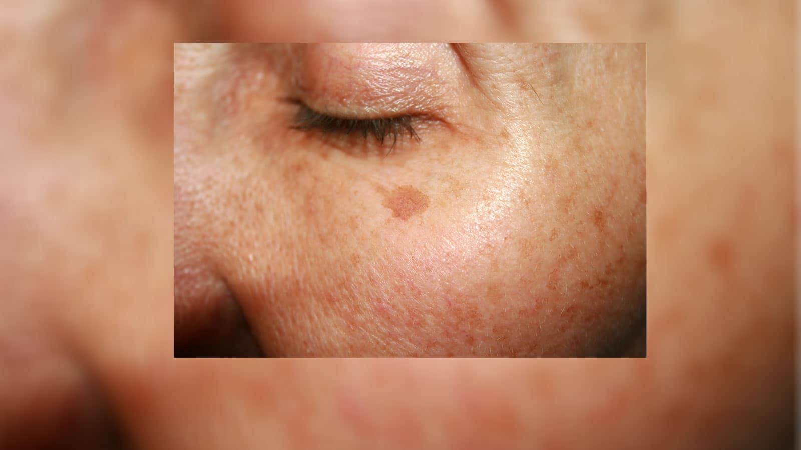 Laser Pigmentation Removal Best Treatment For Skin