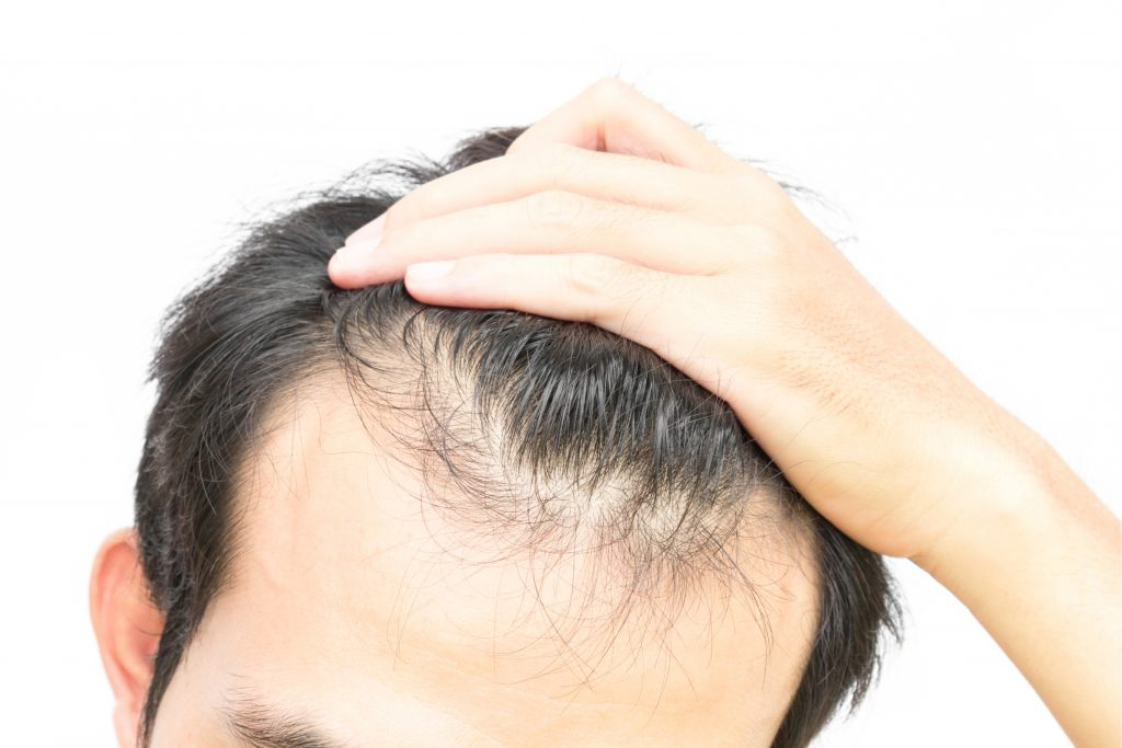 21 Causes of Hair Loss & Insights into Non-Surgical Hair Replacement