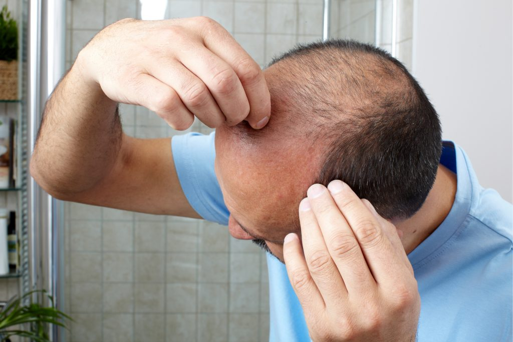 Insights into hair loss treatment by Expert