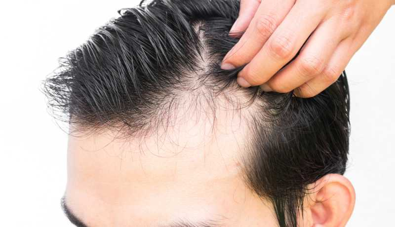Know Who Should Undergo for Hair loss Treatment