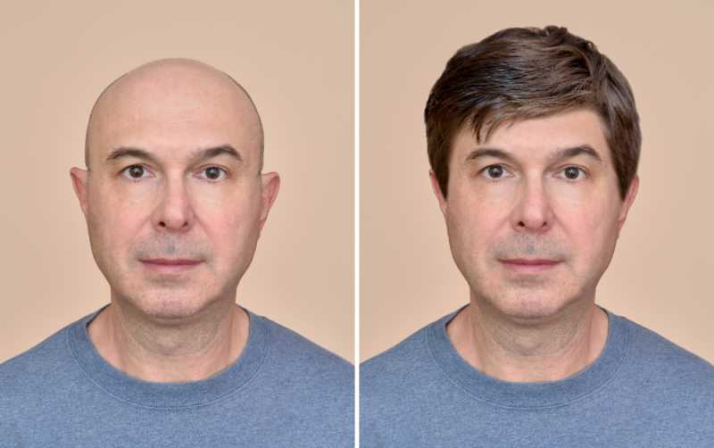 Get the Effective Non-Surgical Hair Replacement
