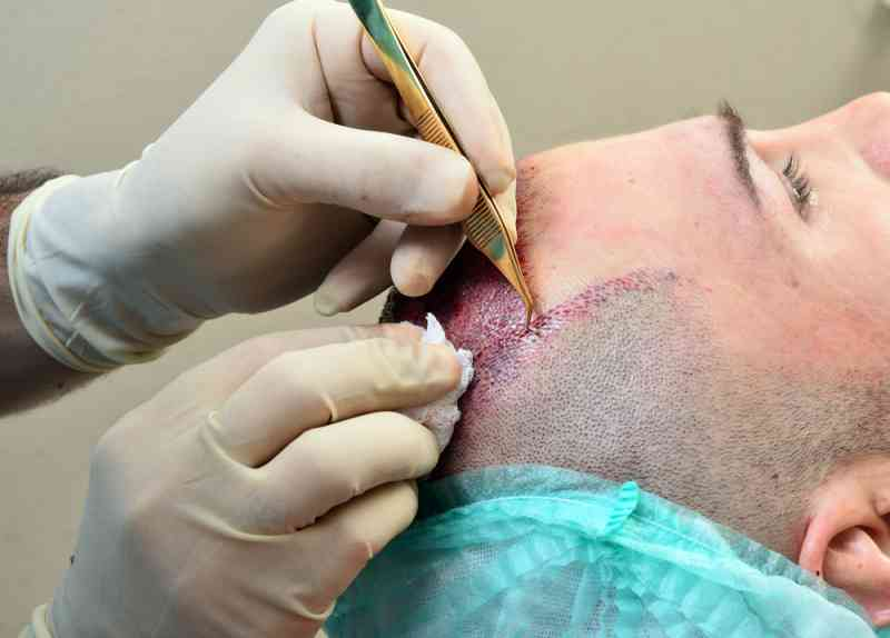 A Sincere Look Out on the Hair Transplant Clinics in Noida