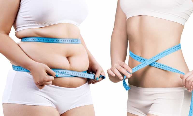Top 5 Magical Procedures Followed in Weight Loss Treatment