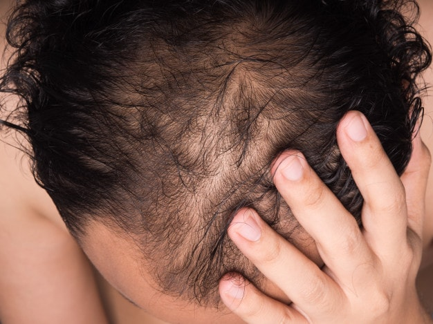 How to find one best hair transplant clinic?