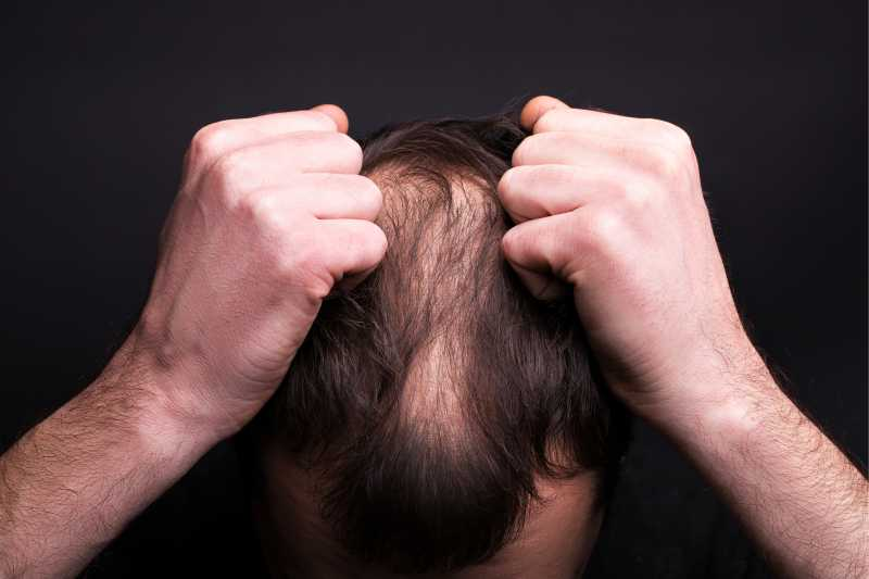 Love And Hate Relationship Between Stress And Hair Loss
