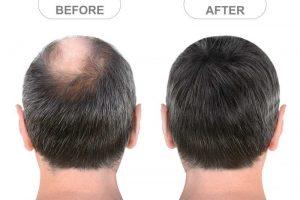 Hair Baldness