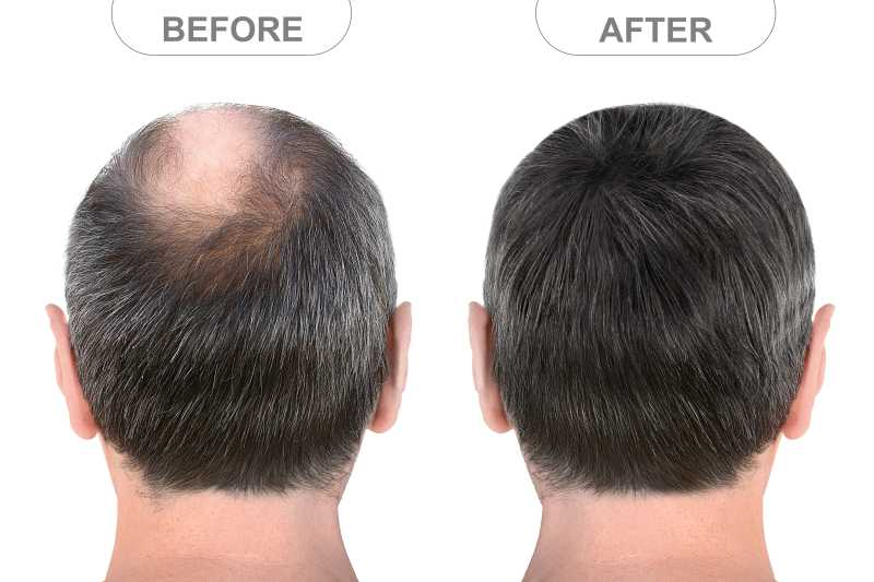 Reasons to choose non surgical hair replacement treatment