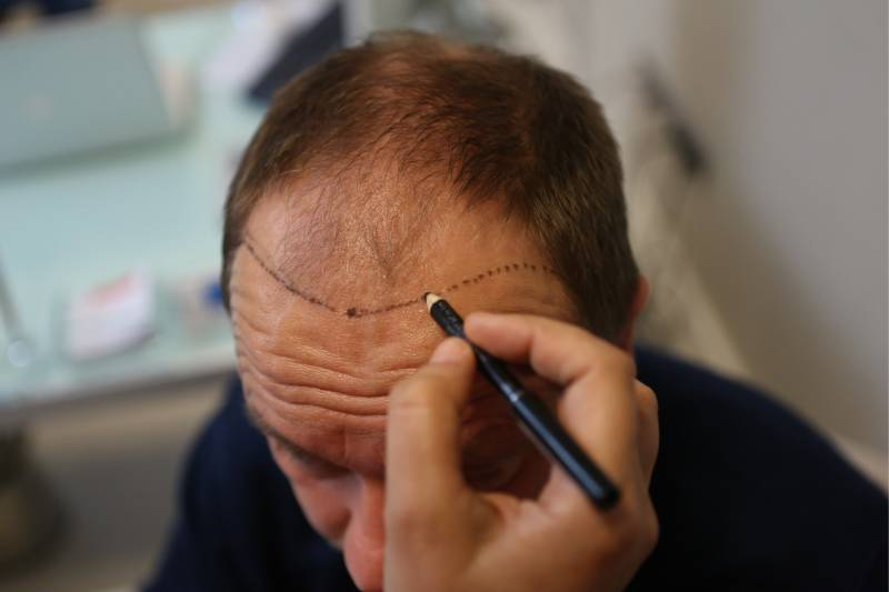 Choose one reliable and affordable hair transplant clinic