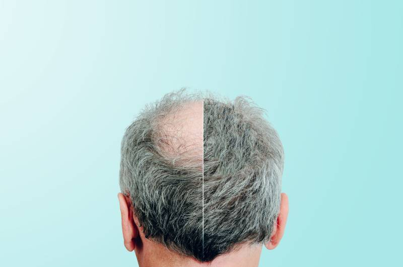 How can you find one best hair replacement clinic?