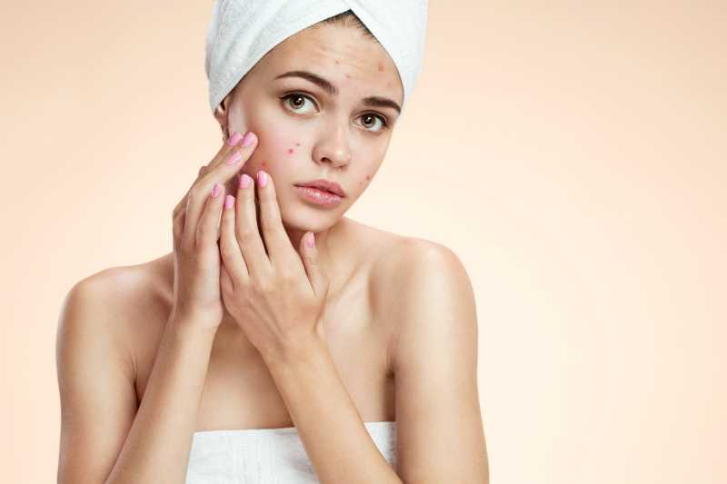Acne Treatments the Secrets to Flawless Skin