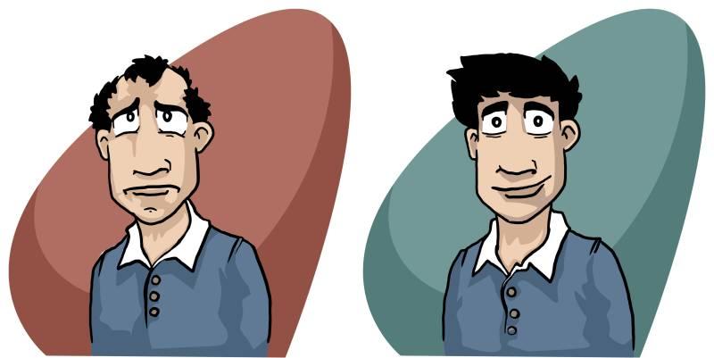 Unbiased Comparison between Wigs vs Hair Transplant