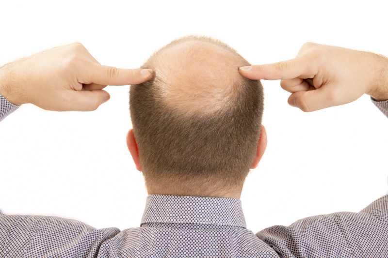 Hair Bonding: Say No to Baldness