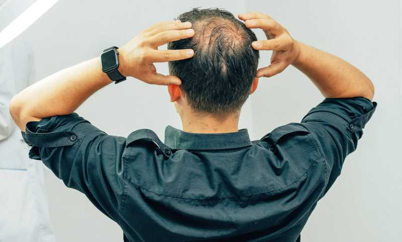 Different Hair Replacement Methods for Successful Hair Restoration